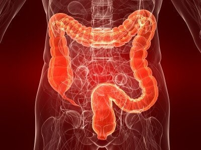 cancer colon hereditaire squamous papilloma temporal bone